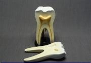 Модель строения зуба